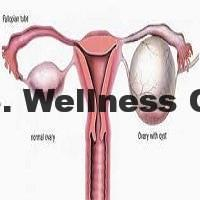 Ovarian Cysts Causes, Symptoms and Effective Natural Treatments