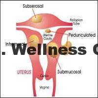 Effects of fibroids on the fertility of every woman