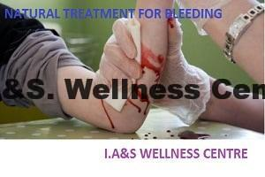 Natural treatment for bleeding