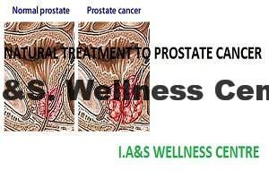 prostate_cancer_1
