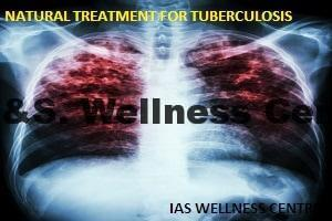 tuberculosis-jpg