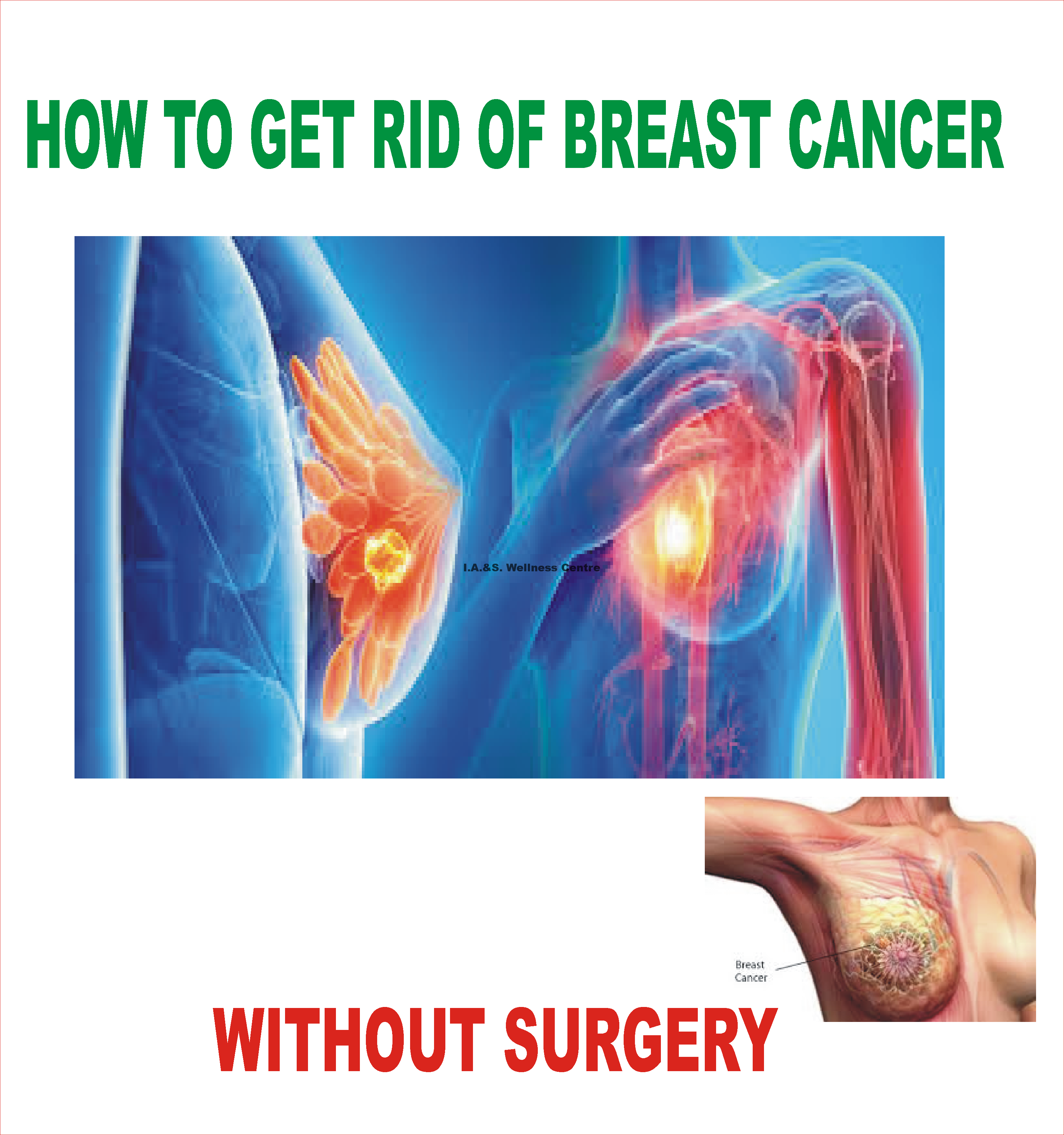 Natural Treatment For Breast Cancer Without Surgery In