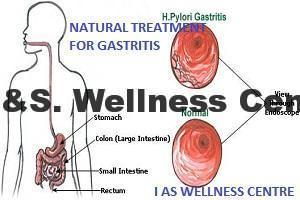 gastritis-picture