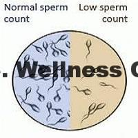 23 causes of low sperm counts and its proven natural treatment