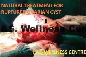complex ovarian cyst treatment