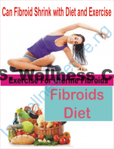CAN FIBROIDS SHRINK WITH DIET AND EXERCISE?