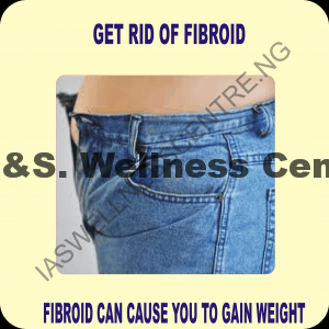CAN FIBROID CAUSE YOU TO GAIN WEIGHT