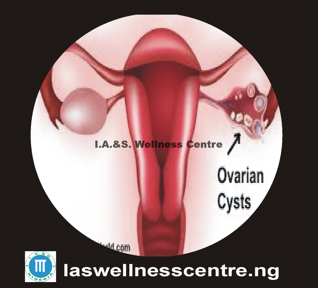 Can I get pregnant if I have an ovarian cyst