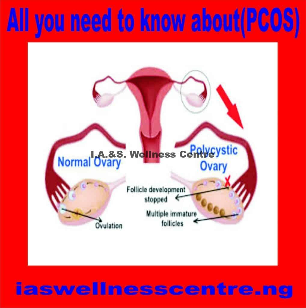 All You Need To Know About Polycystic Ovary Syndrome(PCOS) And It's Natural Treatment In Nigeria