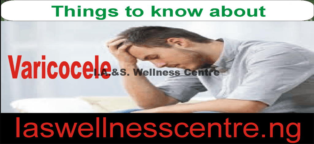All Information You Need To Know About Varicocele And It's Natural Treatment In Nigeria
