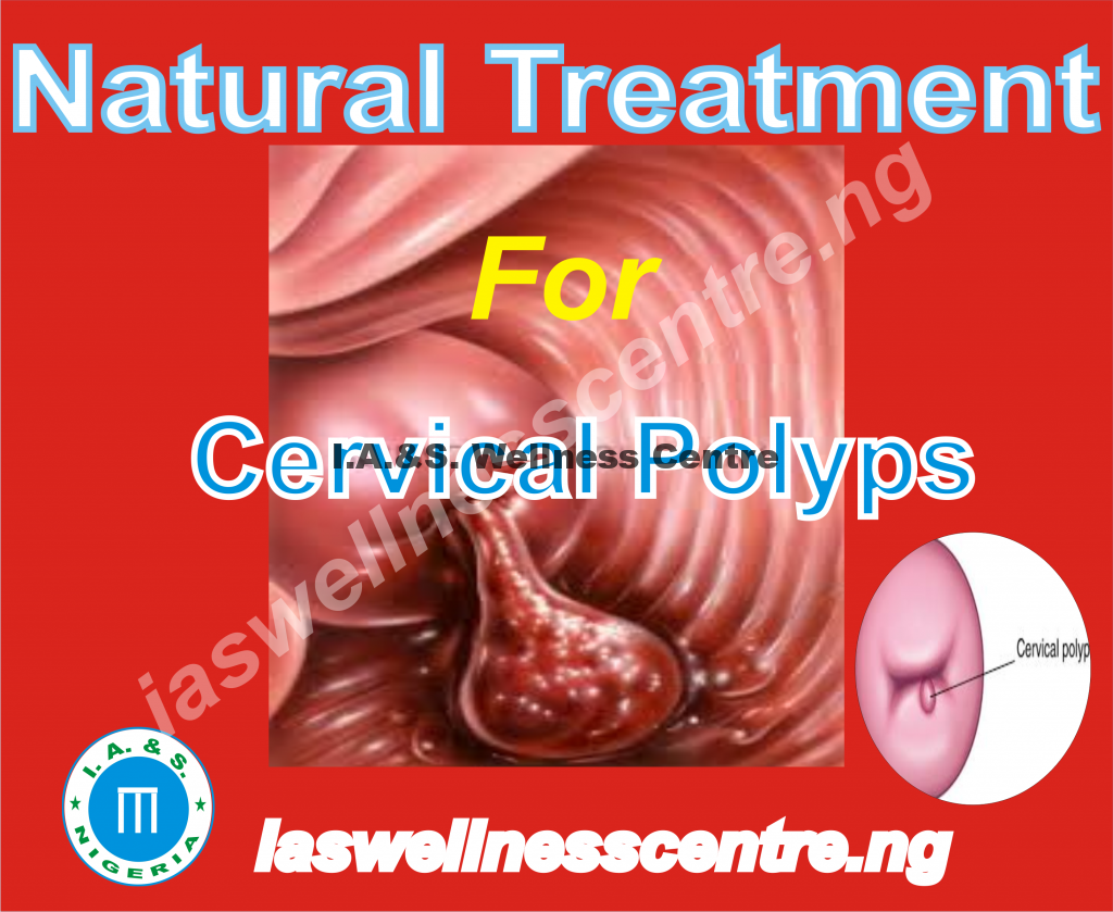 CERVICAL POLYPS AND IT'S NATURAL TREATMENT IN NIGERIA