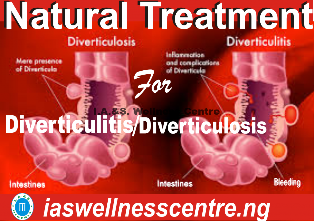 DIVERTICULITIS/DIVERTICULOSIS AND IT'S NATURAL TREATMENT IN NIGERIA