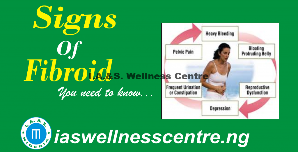 FIBROIDS SIGNS AND SYMPTOMS AND IT'S NATURAL TREATMENT IN NIGERIA