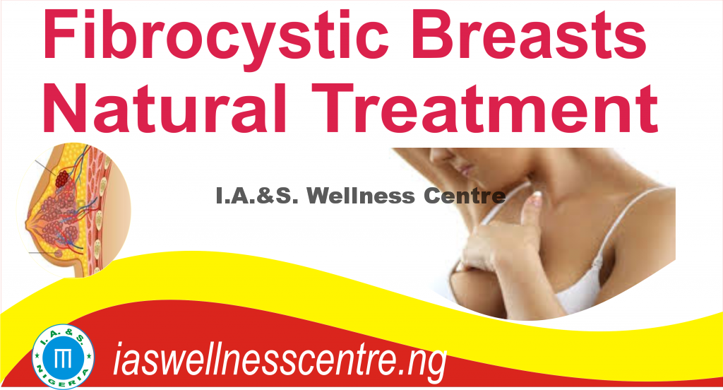 FIBROCYSTIC BREAST AND IT'S NATURAL TREATMENT IN NIGERIA