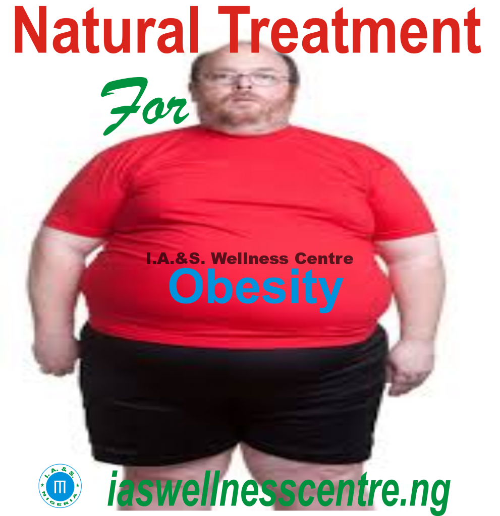 All You Need To Know About Obesity(Overweight) And It's Natural Solution In Nigeria