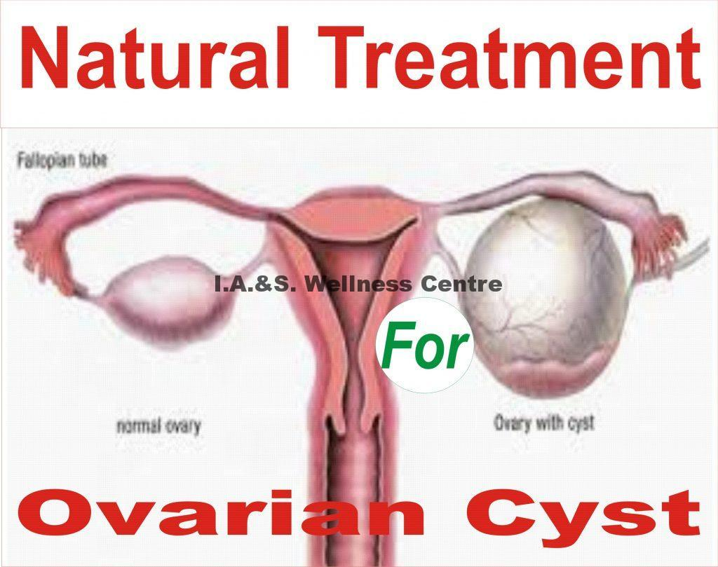 OVARIAN CYSTS AND IT'S NATURAL TREATMENT IN NIGERIA