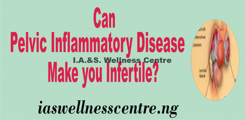 CAN PELVIC INFLAMMATORY DISEASE MAKE YOU INFERTILE?