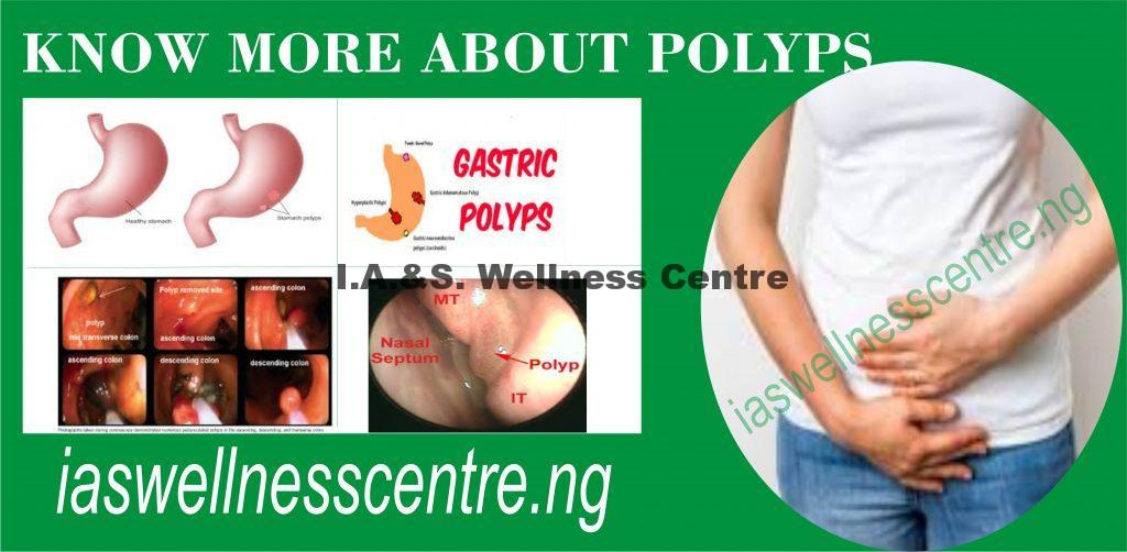 DIFFERENT TYPES OF POLYPS AND IT'S NATURAL TREATMENT IN NIGERIA