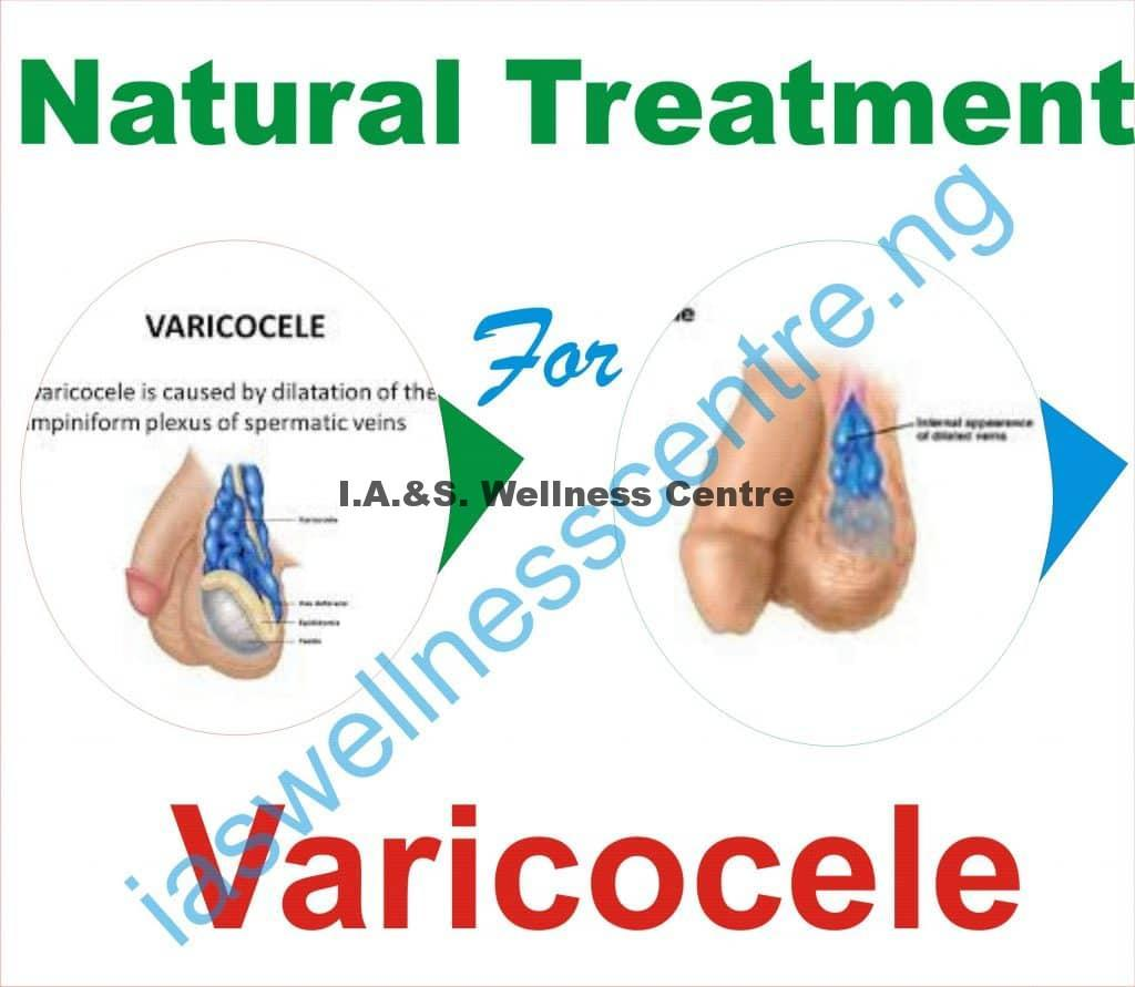 VARICOCELE AND IT'S NATURAL TREATMENT IN NIGERIA