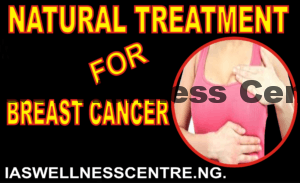 BREAST CANCER(CELL OF THE BREAST) AND IT'S NATURAL TREATMENT IN NIGERIA