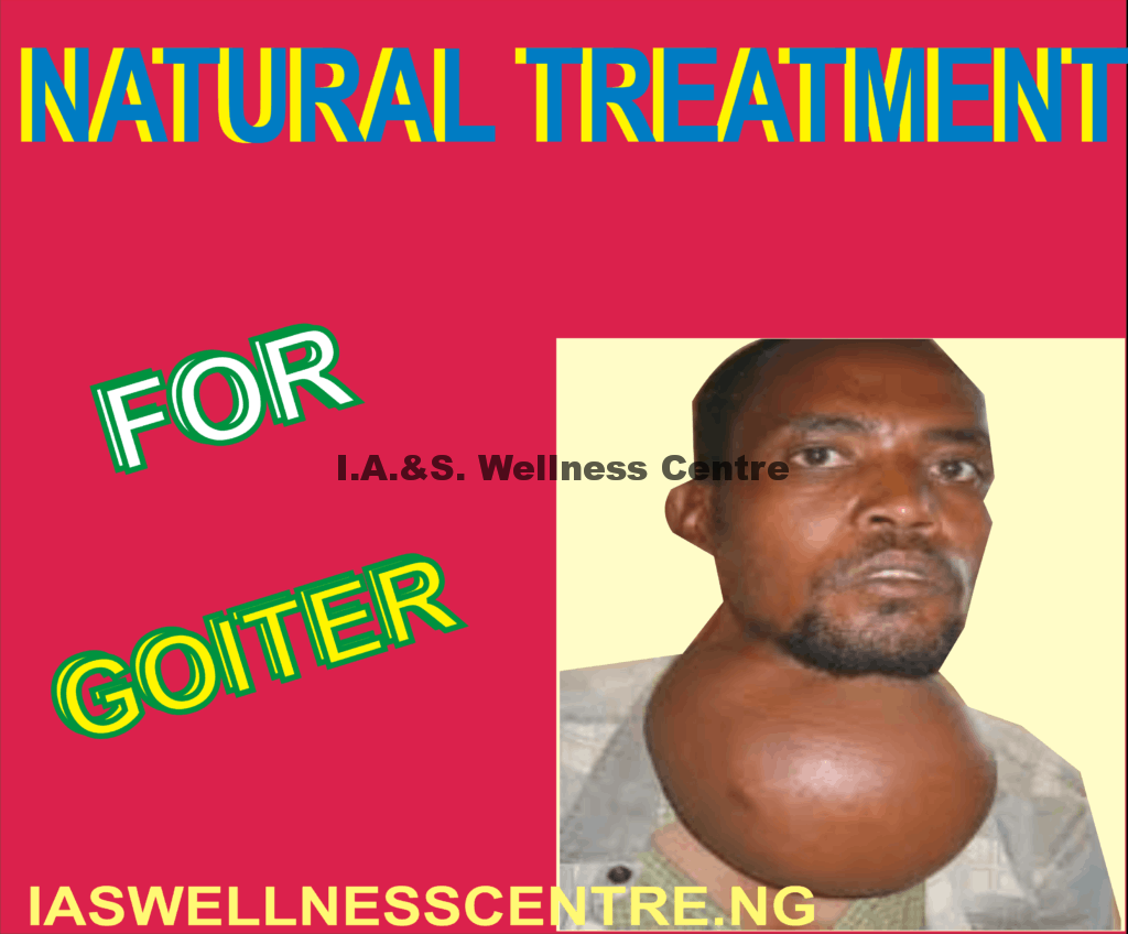 GOITER AND IT'S NATURAL TREATMENT IN NIGERIA