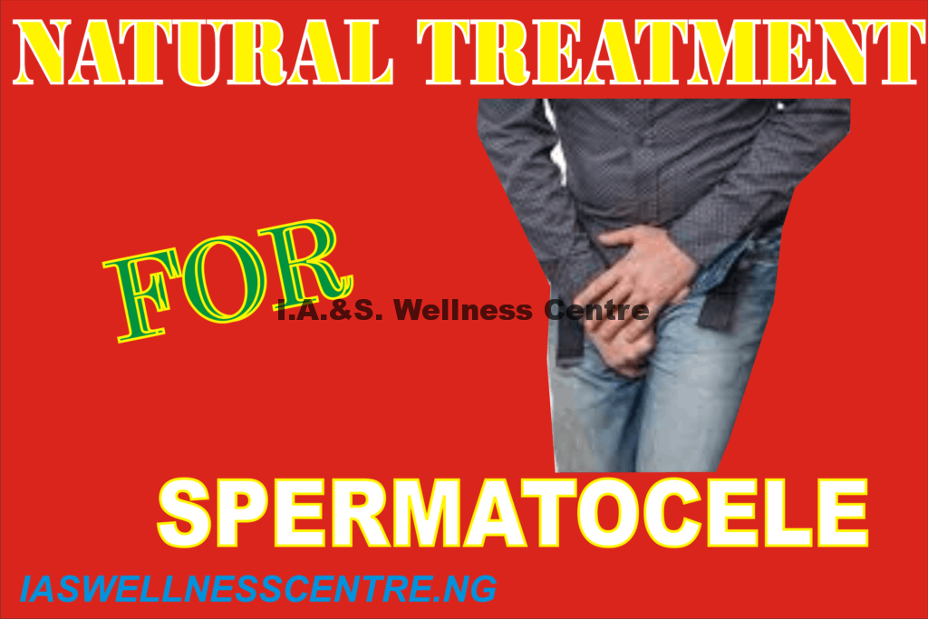 SPERMATOCELE AND IT'S NATURAL TREATMENT IN NIGERIA