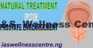 NATURAL TREATMENT FOR PROSTATE ENLARGEMENT IN NIGERIA