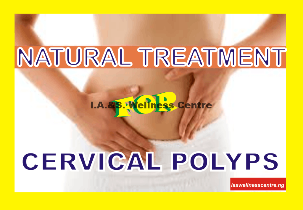 NATURAL TREATMENT FOR CERVICAL POLYPS IN NIGERIA