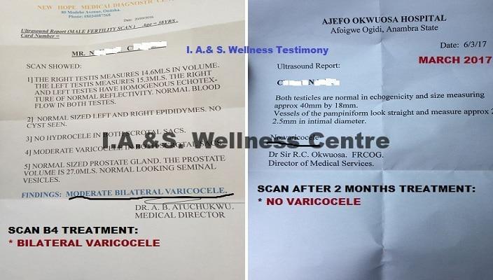 Test b4 & after varicocele treatment