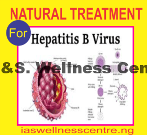 HEPATITIS B (HBV) AND IT'S NATURAL TREATMENT IN NIGERIA
