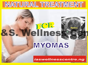 MYOMAS AND IT'S NATURAL TREATMENT IN NIGERIA
