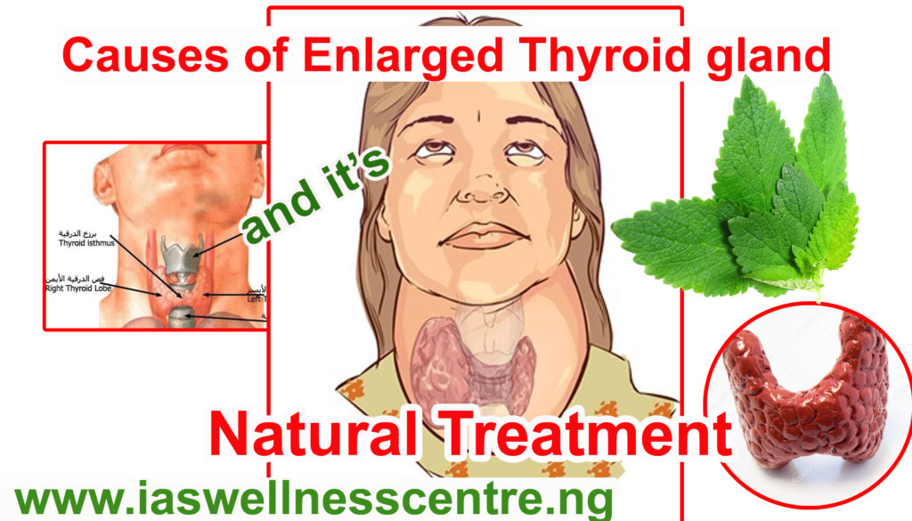 causes thyroid