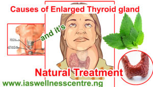 causes thyroid