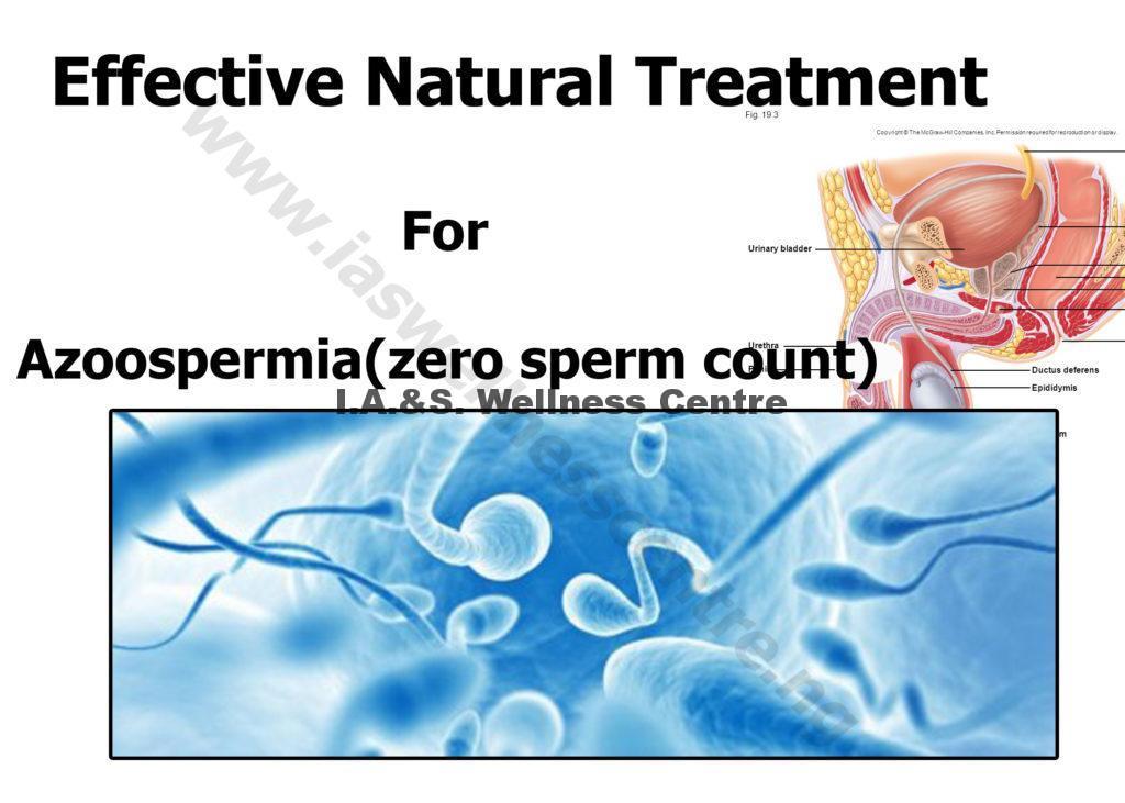 azoospermia ( zero sperm count)