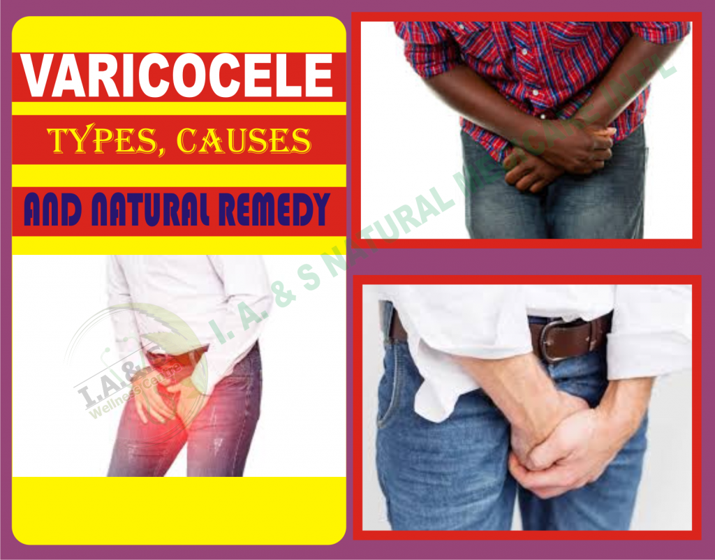 VARICOCELE-TYPES, CAUSES AND NATURAL REMEDIES