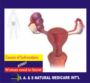 CAUSES OF HYDROSALPINX EVERY WOMAN NEED TO KNOW